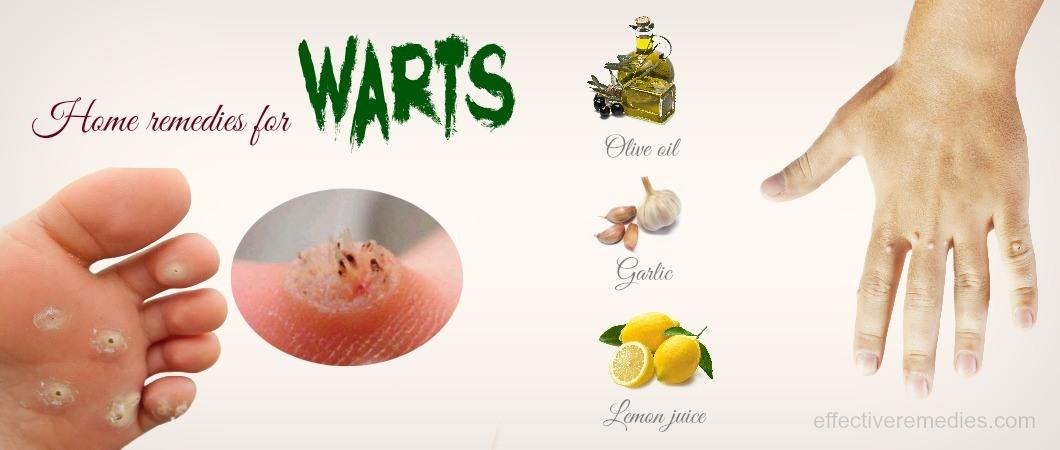 Flat Feet Natural Remedies