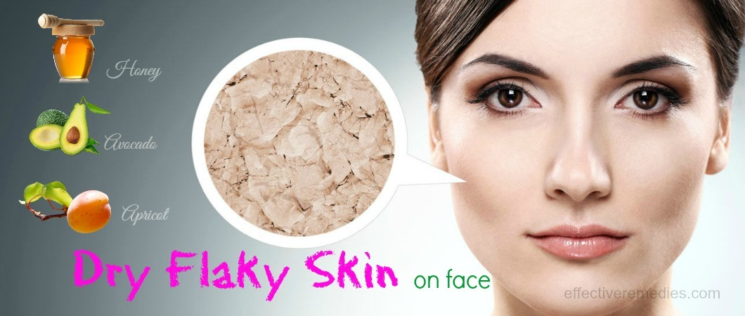 Flaky Facial Skin 121