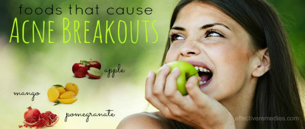 foods that cause acne breakouts