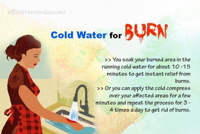 home-remedies-for-burns
