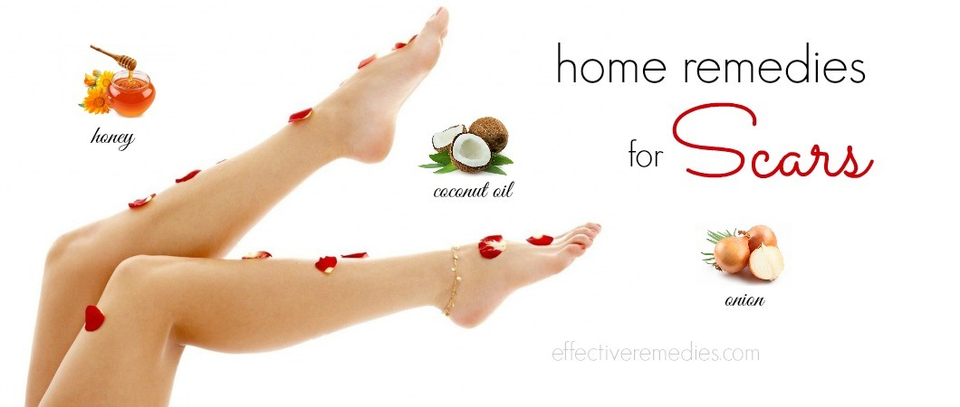 home remedies for scars
