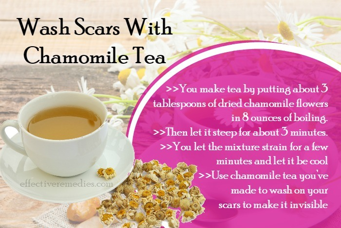 homeremedies-for-scars