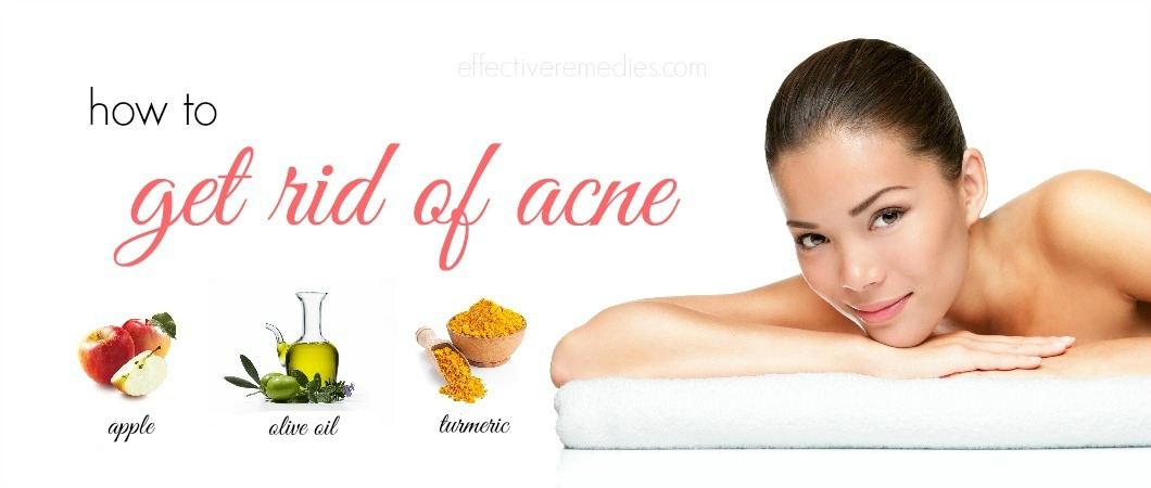 BRIGITTE: Quick ways to clear up acne