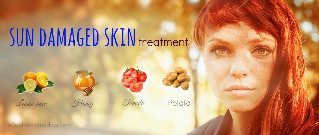 sun damaged skin treatment
