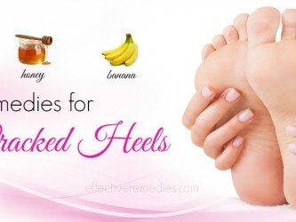 home remedies for cracked heels