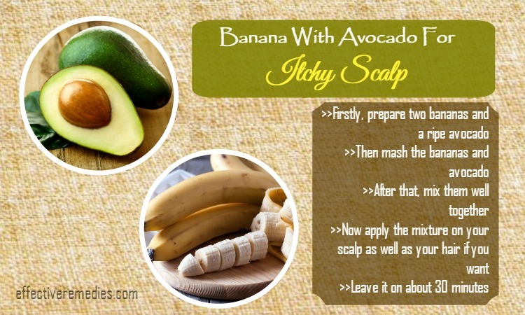 home-remedies-for-itchy-scalp