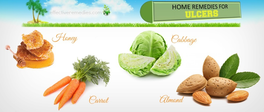 home remedies for ulcers