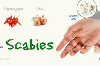 home-remedies-for-scabies