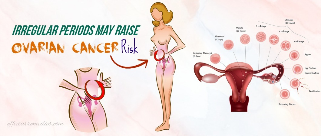 Irregular Periods May Raise Ovarian Cancer Risk