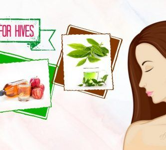 home remedies for hives