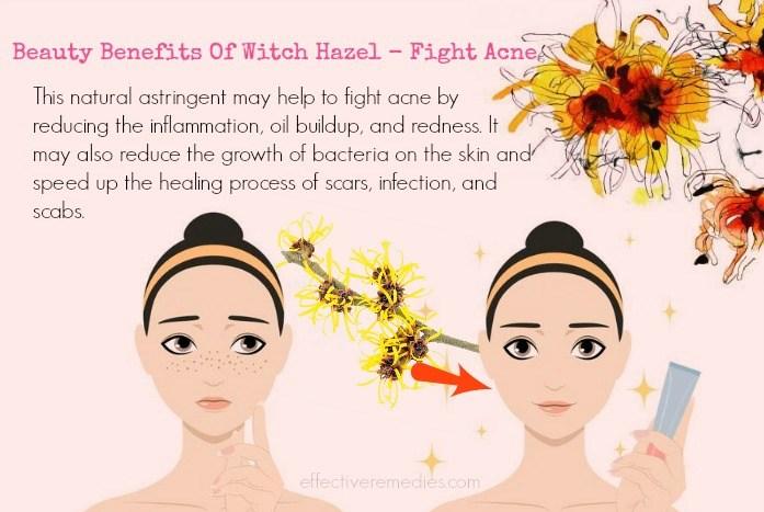 Beauty Benefits Of Witch Hazel