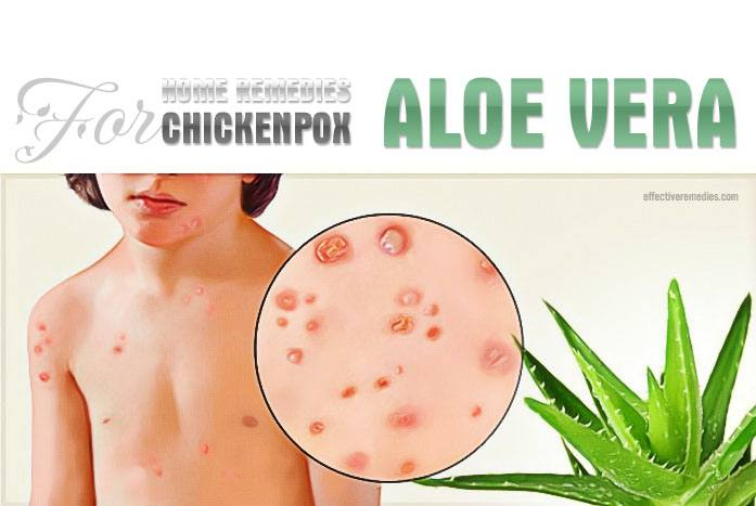 home remedies for chickenpox - aloe vera