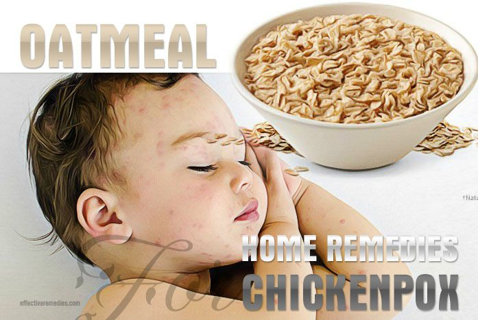 home remedies for chickenpox - oatmeal