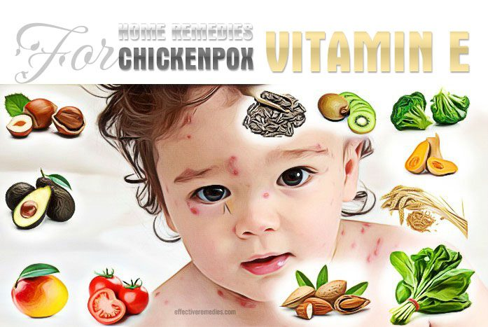 home remedies for chickenpox - vitamin e