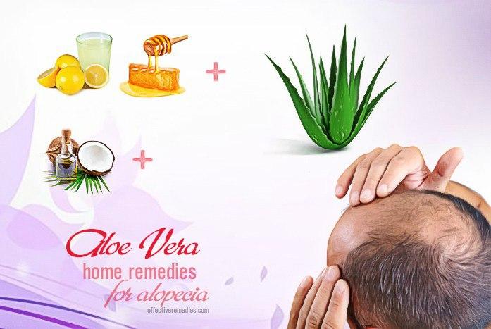 home remedies for alopecia - aloe vera