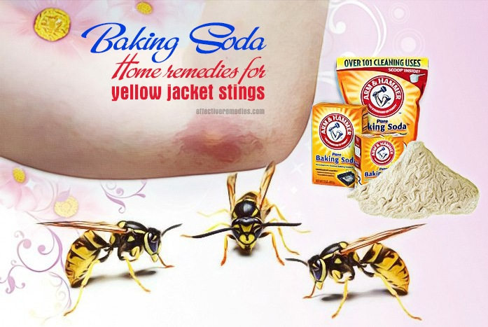 home remedies for yellow jacket stings - baking soda