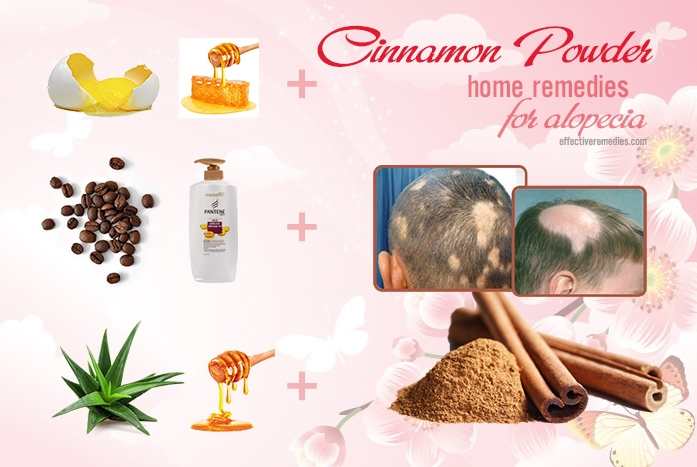 home remedies for alopecia - cinnamon powder