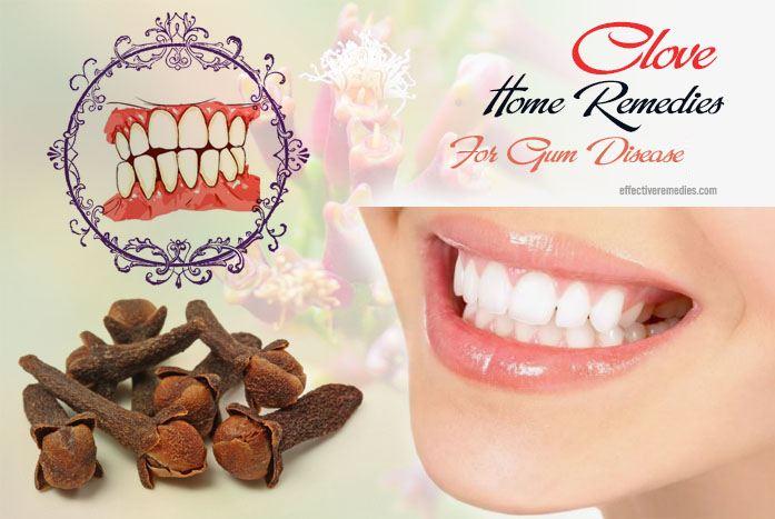 home remedies for gum disease - clove