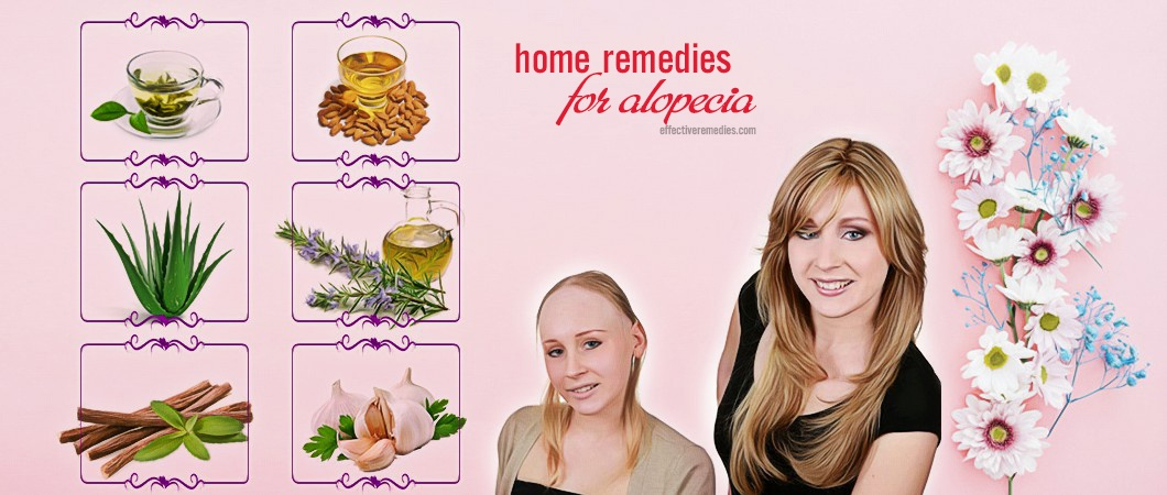 natural home remedies for alopecia