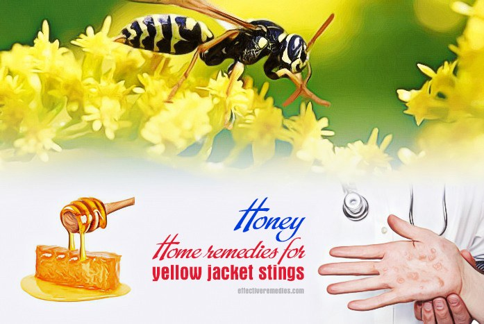 home remedies for yellow jacket stings - honey