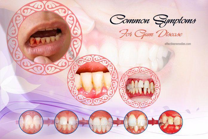natural home remedies for gum disease - common symptoms of gum disease
