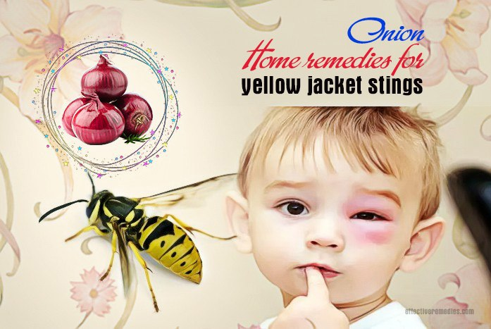 home remedies for yellow jacket stings - onion