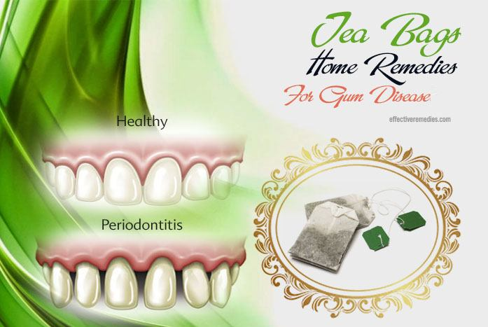 home remedies for gum disease - tea bags
