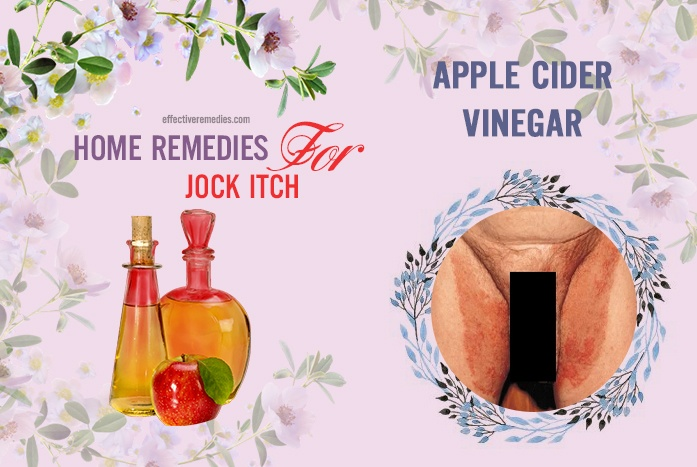 home remedies for jock itch - apple cider vinegar