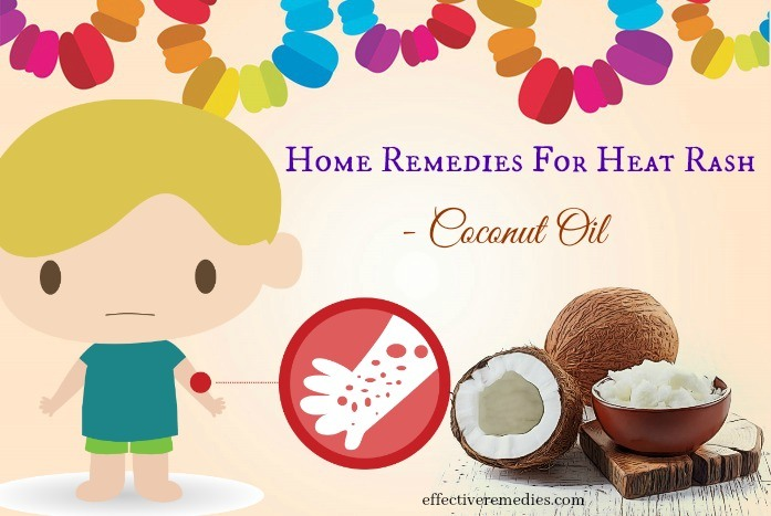 home remedies for heat rash - coconut oil