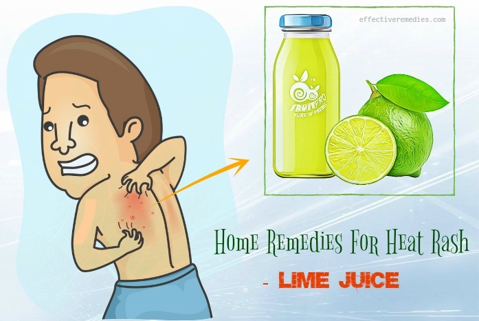 home remedies for heat rash - lime juice
