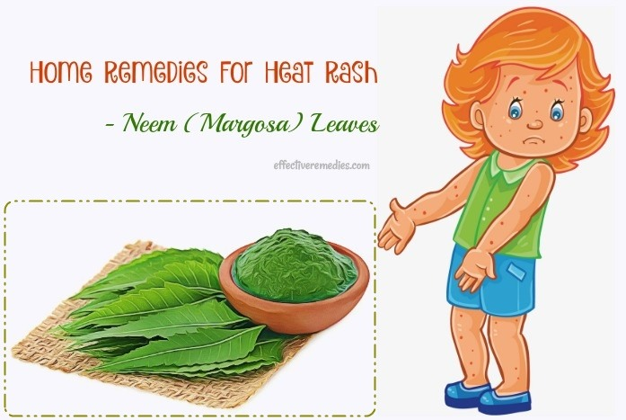 home remedies for heat rash - neem (margosa) leaves
