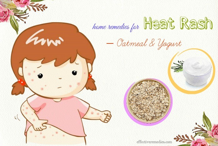 home remedies for heat rash - oatmeal & yogurt