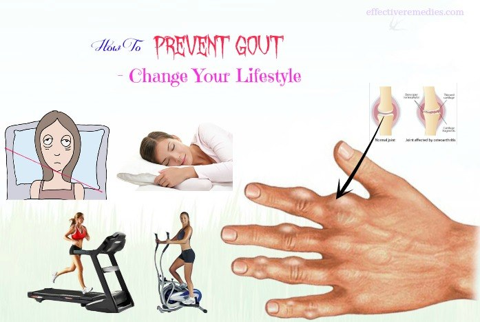 how to prevent gout - change your lifestyle