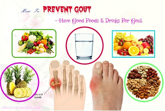 how to prevent gout from getting worse - have good foods & drinks for gout