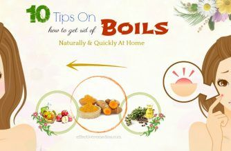 tips on how to get rid of boils