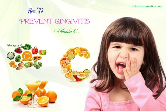 how to prevent gingivitis - vitamin c