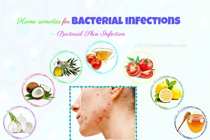 home remedies for bacterial infections in mouth - bacterial skin infection