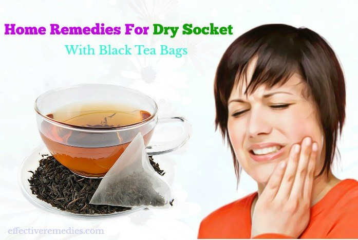 natural home remedies for dry socket - black tea bags