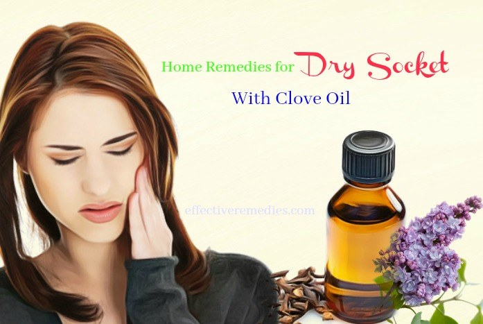 home remedies for dry socket pain - clove oil