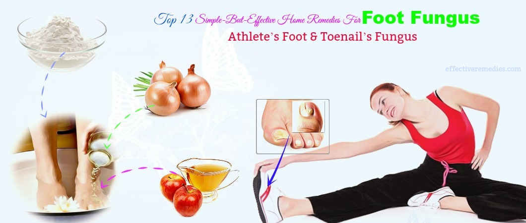 home remedies for foot fungus athlete foot