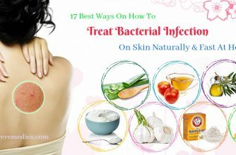 how to treat bacterial infection on skin