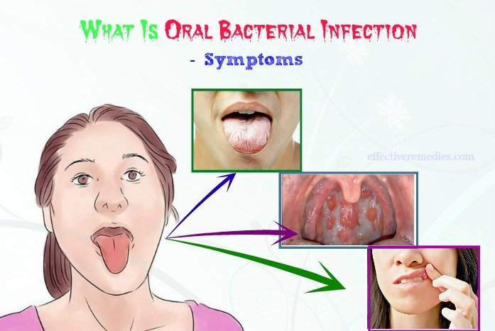 what is oral bacterial infection and causes - symptoms