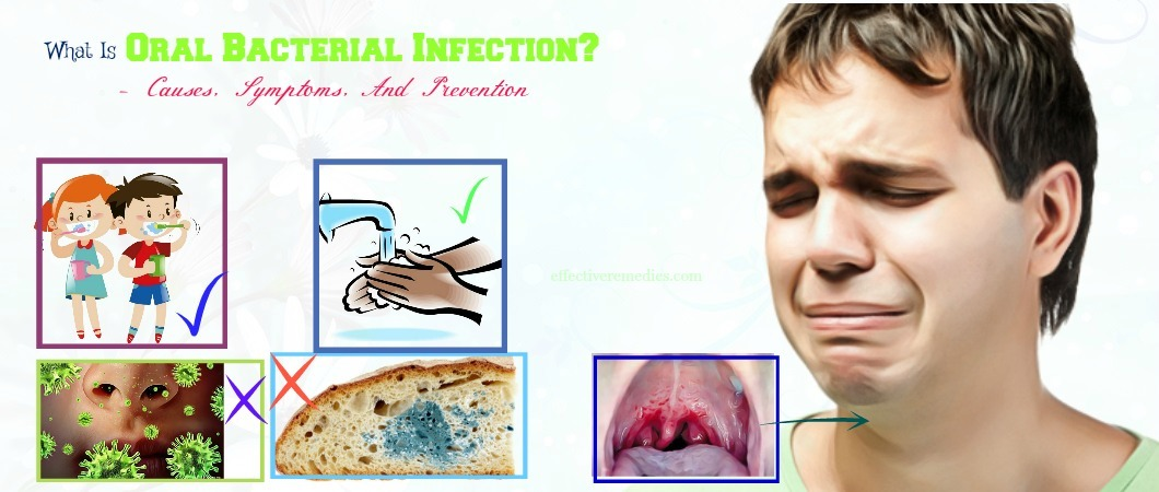 what is oral bacterial infection and causes