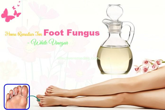 home remedies for foot fungus toenail fungus - white vinegar