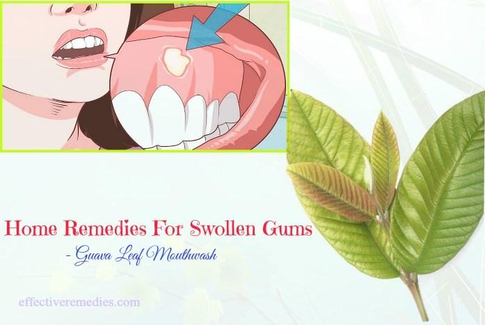 best home remedies for swollen gums - guava leaf mouthwash