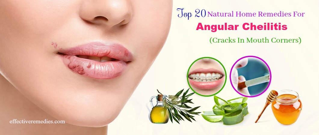 20 Home Remedies For Angular Cheilitis Cracks In Mouth Corners