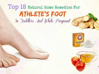 home remedies for athlete's foot while pregnant