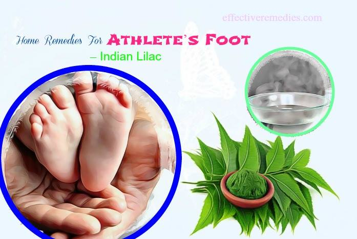 home remedies for athlete's foot - indian lilac
