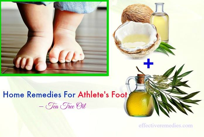 home remedies for athlete's foot - tea tree oil