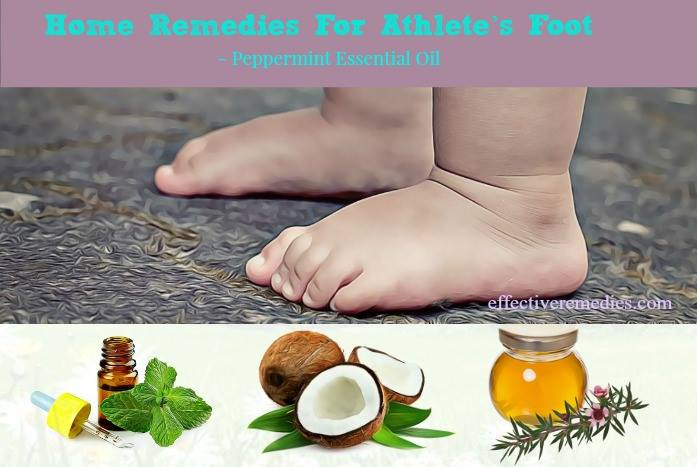 home remedies for athlete's foot - peppermint essential oil